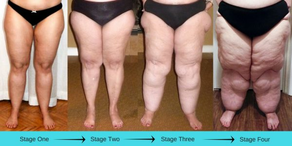 The Painful Fat Disease: Lipedema – Weelunk