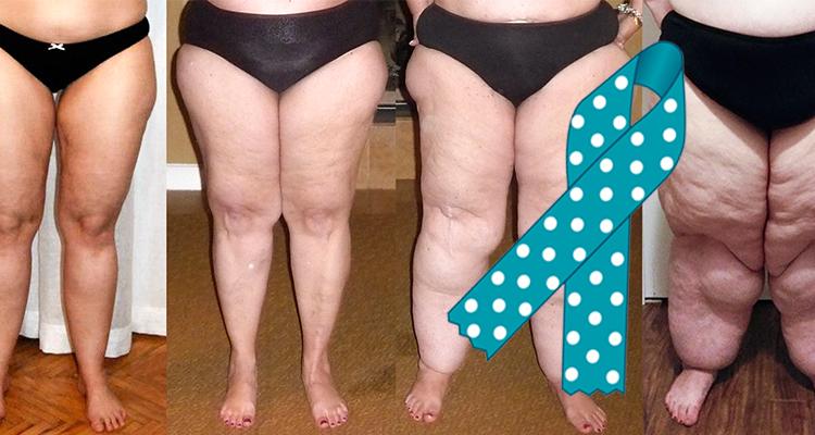 The Painful Fat Disease: Lipedema – Weelunk